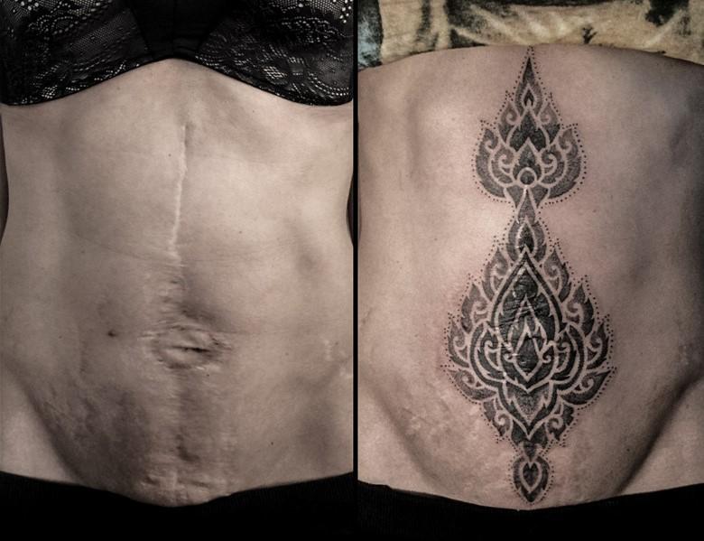 Bauch tattoo am narbe Bauchstraffung Abdominoplastik